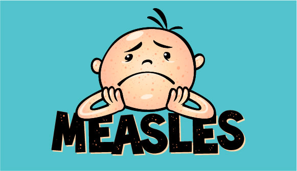 Measles is back