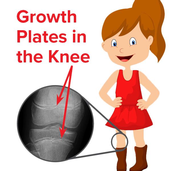 Wolfson Children's Hospital Growth Plates