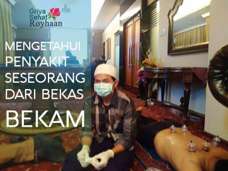 BekamBintaro.com Mengetahui Penyakit dari Bekas Bekam