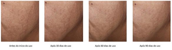Veja como o ácido kójico age na pele