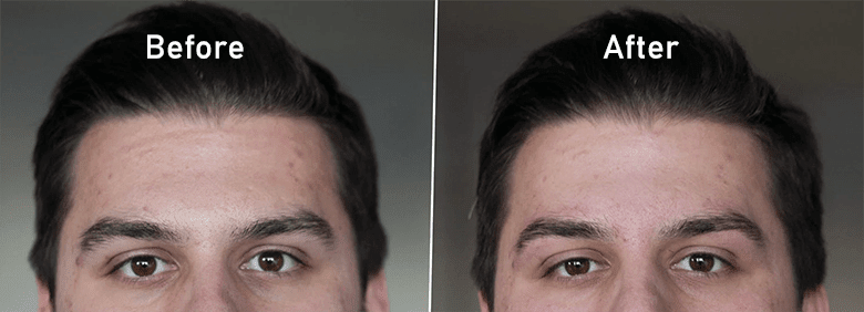 guys eyebrow threading before and after