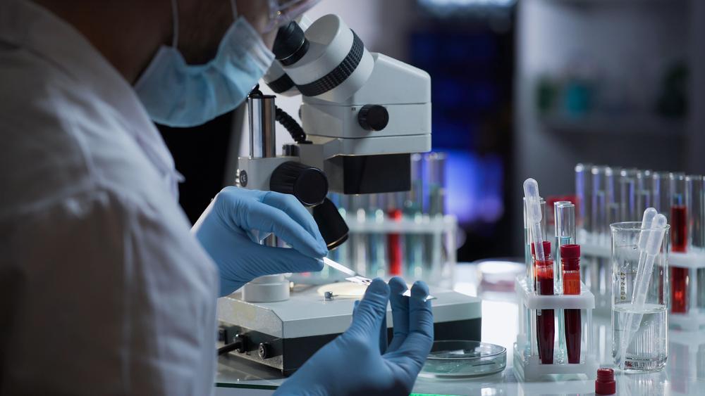 Analize pentru a afla nivelul trigliceridelor