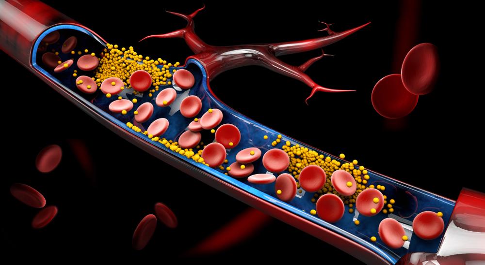 Riscurile colesterolului marit