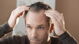 השתלת שיער, צילום: shutterstock
