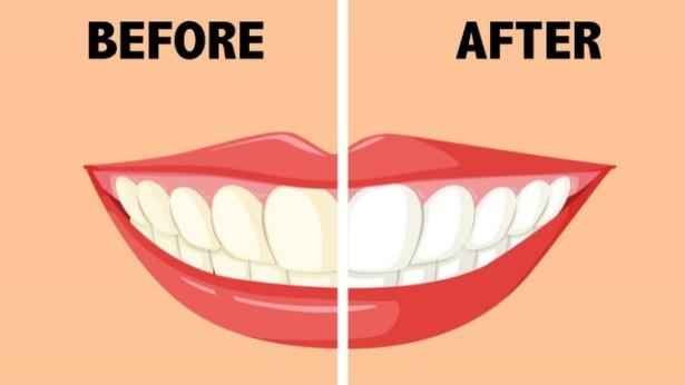 Teeth, צילום: 123rf.com