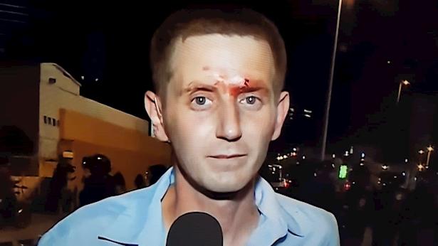 רועי ינובסקי הפצוע במהלך סיקור חסימת נתיבי איילון על ידי בני העדה האתיופית, צילום: מסך: כאן 11