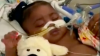 Texas Judge Rules Hospital Can Remove 11-Month-Old From Life Support Despite Her Mother's Wishes