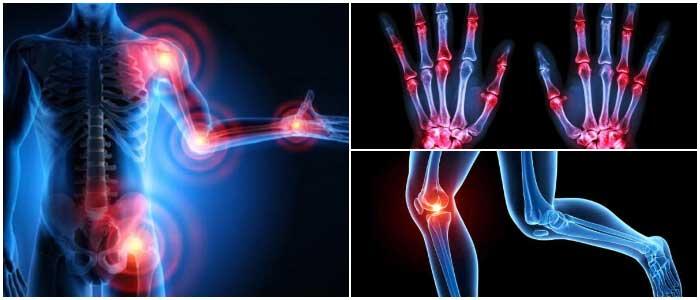 arthritis treatment in Delhi