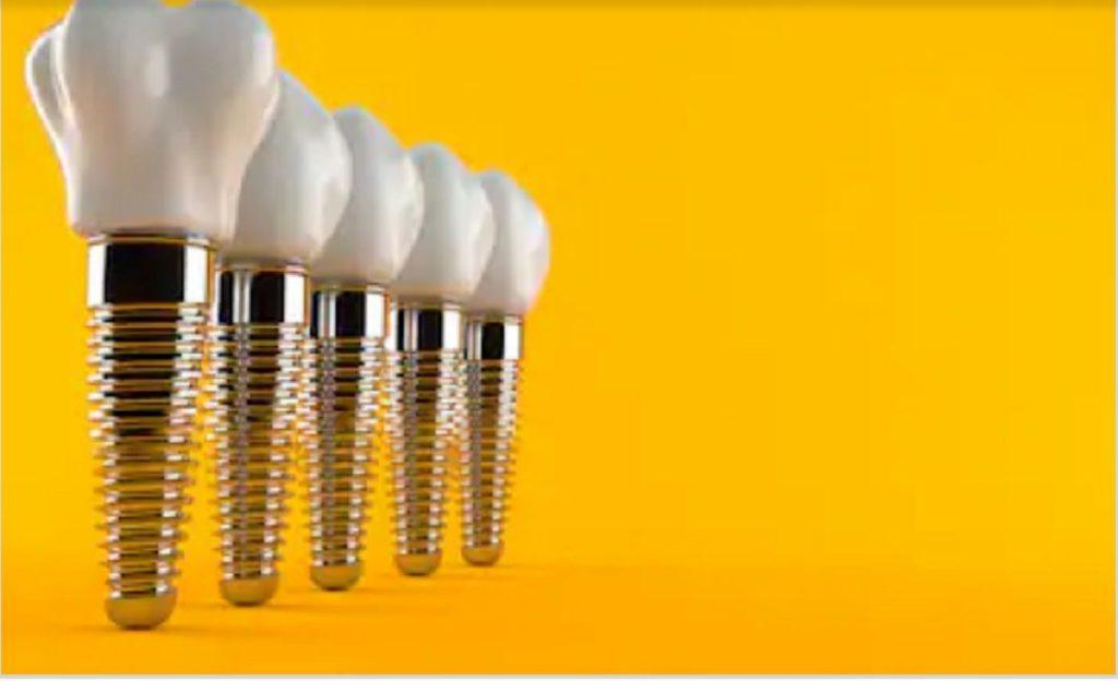 best dental implant in Delhi