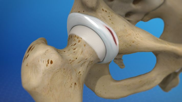 Hip-Labrum-Tear