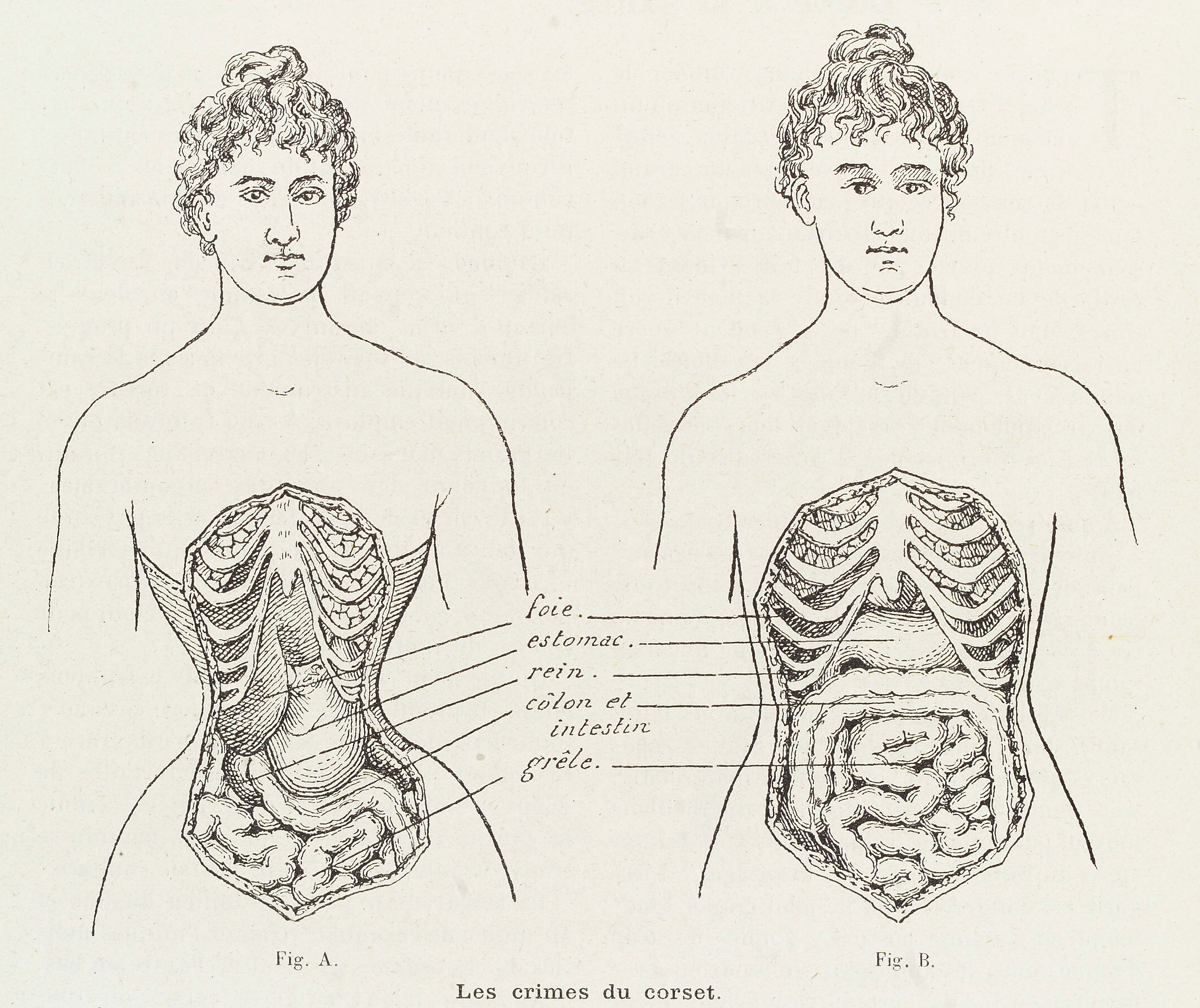 This image shows the crimes of corset and how it cripples and restricts the bodily organs in women.