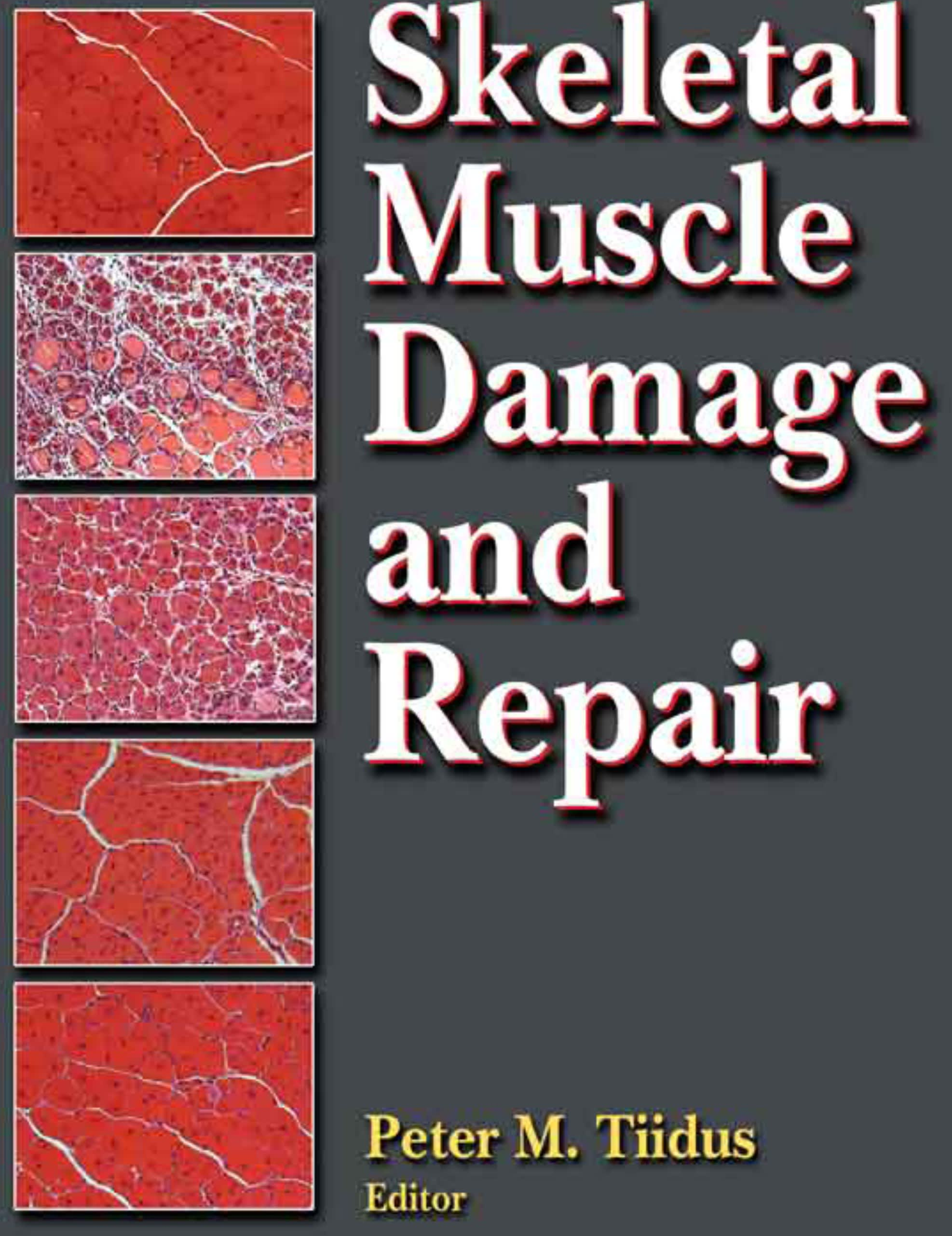Book cover for Skeletal Muscle Damage and Repair