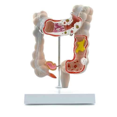 "Large Intestine Model ""Diseased Colon"""