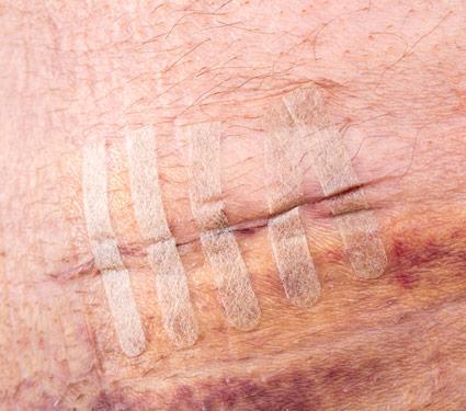 Steri-Strips