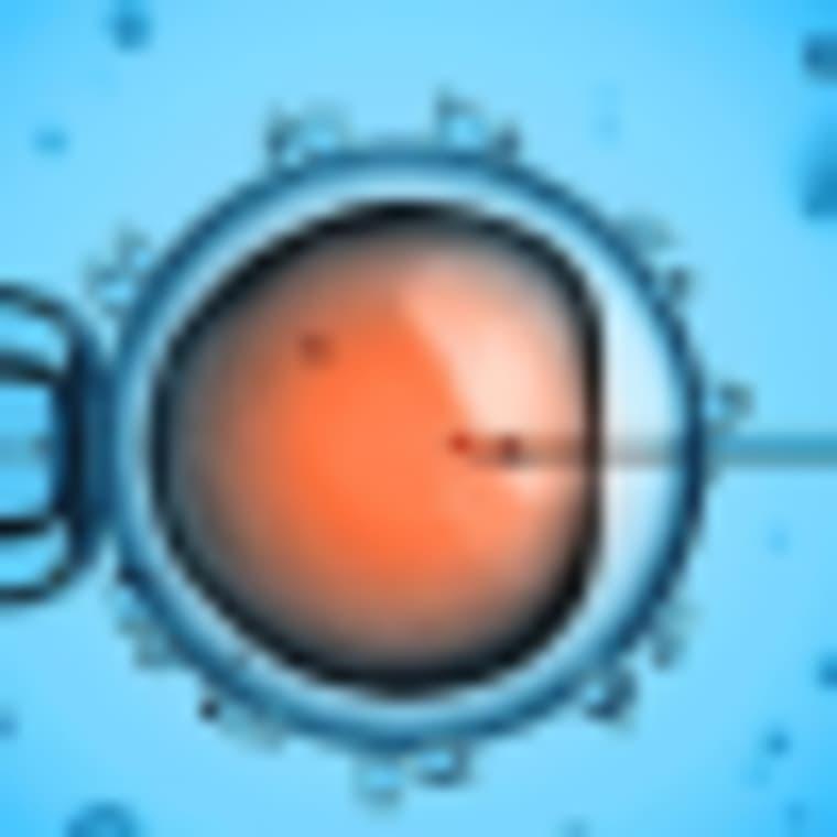 Az első lombikbébi 1978. július 25-én született meg a világon