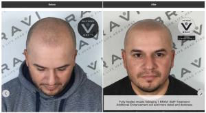 before-after photos showing how bravi scalp micropigmentation restores hairline and hair density
