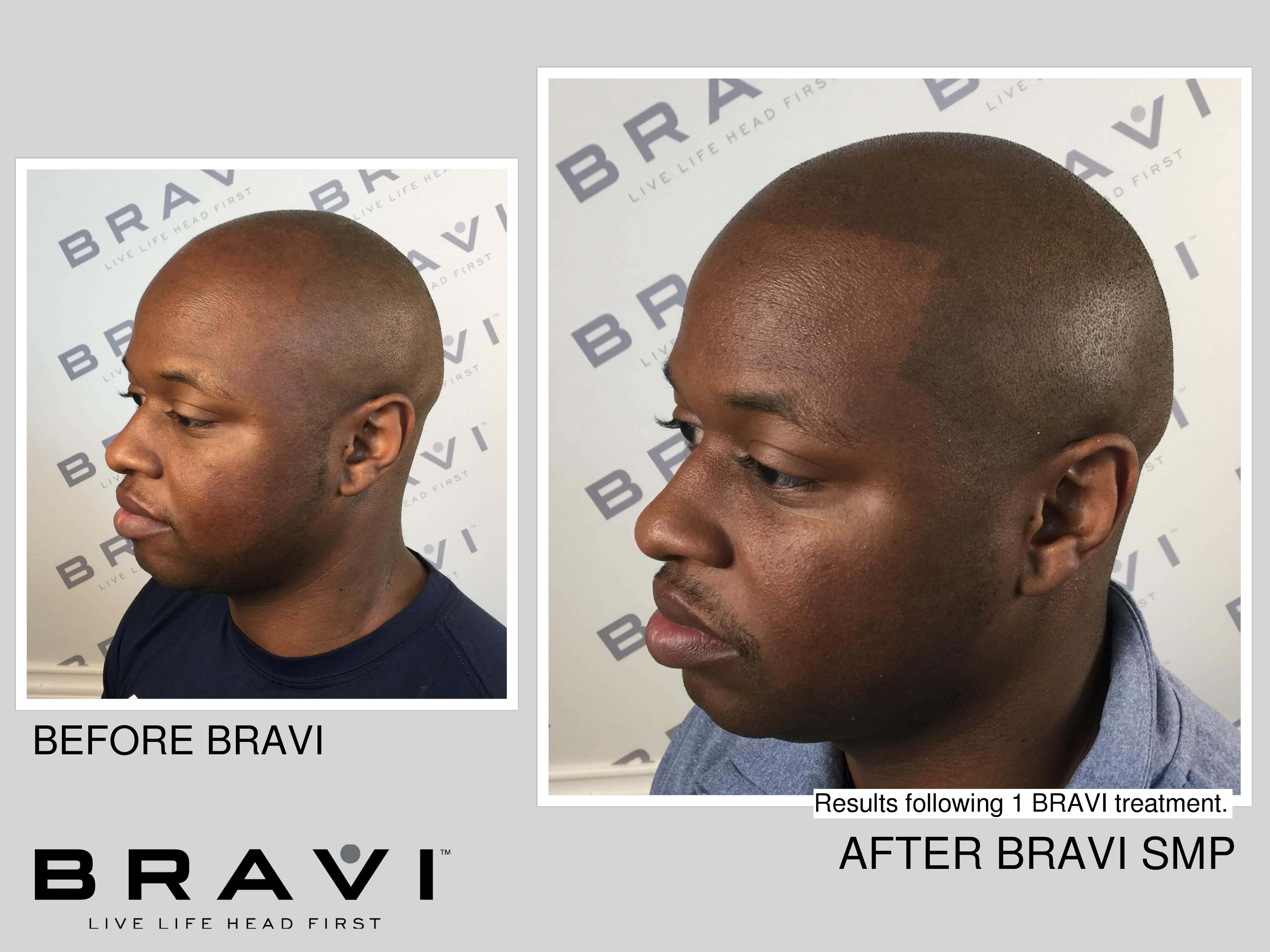 african american hairline baldness treated with scalpmicropigmentation at bravi