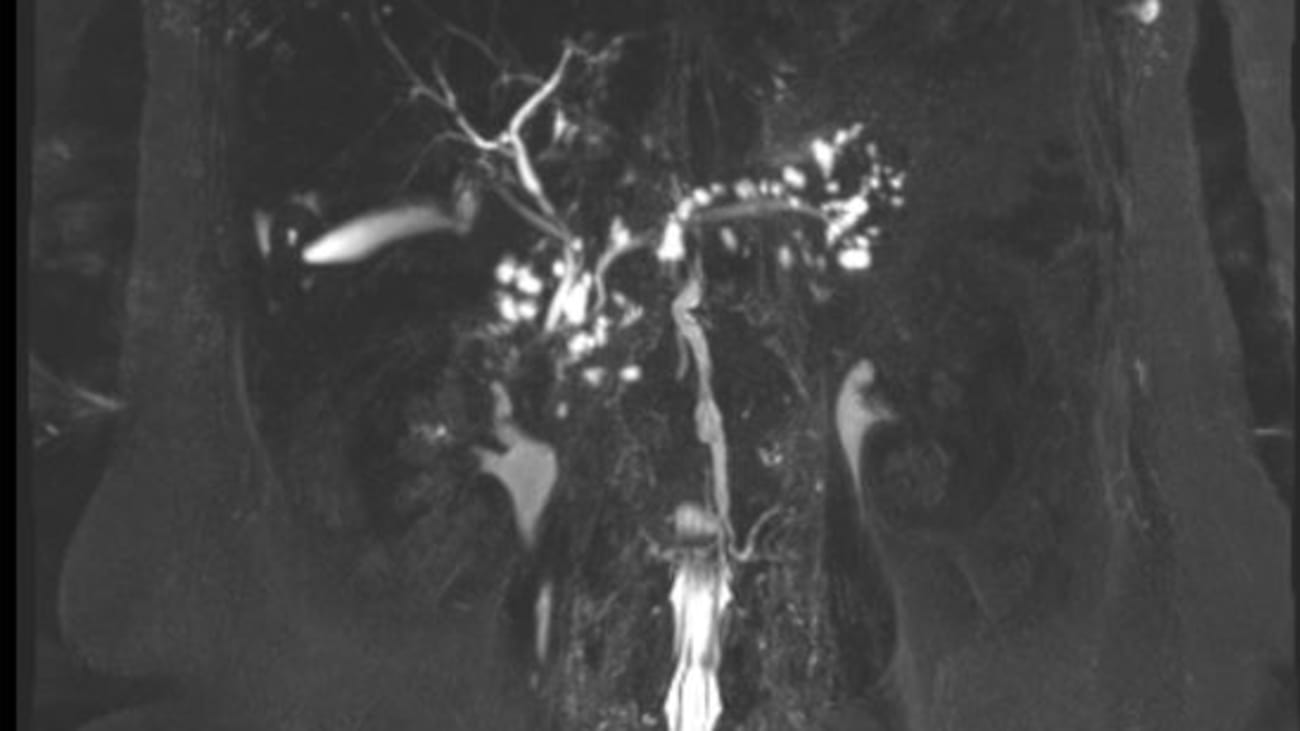 MRCP scan of a patient with innumerable pancreatic cysts