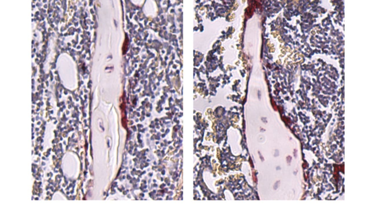 Stained tibiae from germ-free (left) and SFB-mono- associated (right) mice. Mice colonized with SFB displayed an increase in osteoclasts (stained red), which resorb bone.