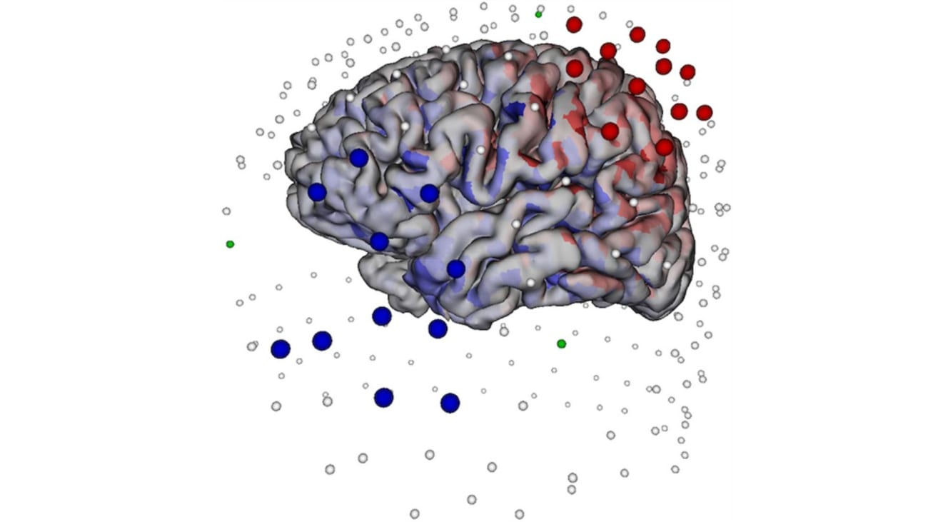 A cloud of source-sink electrodes selected for TES. The 15 large blue electrodes are those selected as cathodes, and the 15 large red electrodes are those selected as anodes. The arrows pointing away from the left anterior temporal lobe represent the cortical patches selected for target spike cluster localization.