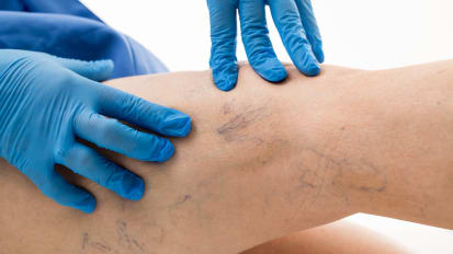 Foam Ablation of Varicose Veins:  Why, When and How