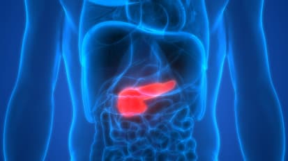 Pancreas Transplantation