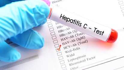Viral Hepatitis: What Are We Doing and What Should We Be Doing?