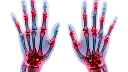 A Year in Review: Rheumatology