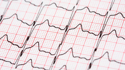 Atrial Fibrillation: To Treat or Ablate?