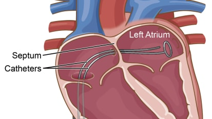 Catheter Ablation of Atrial Fibrillation – Update for 2013