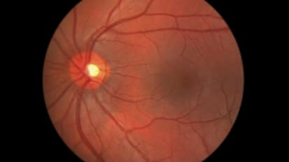 Retinopathy of Prematurity (ROP): Treatment and Results