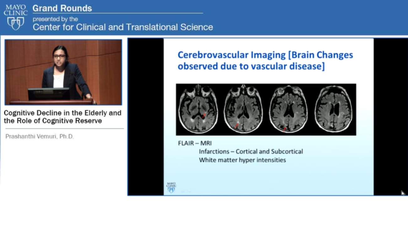 Grand Rounds: Cognitive Decline in the Elderly and the Role of Cognitive  Reserve