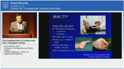 Grand Rounds: The Establishment of a Hand and Face Transplant Center