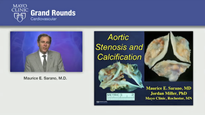 Grand Rounds: Aortic Stenosis and Calcification
