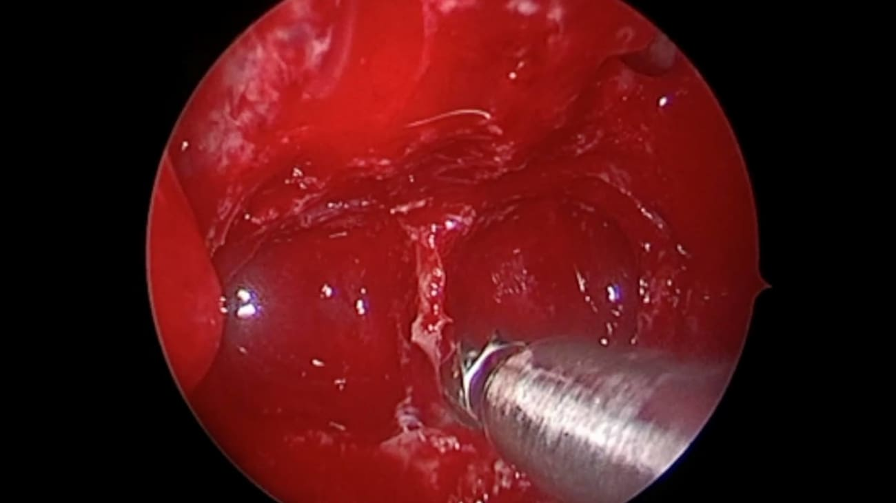 Nasal Endoscopy to Access a Pituitary Tumor