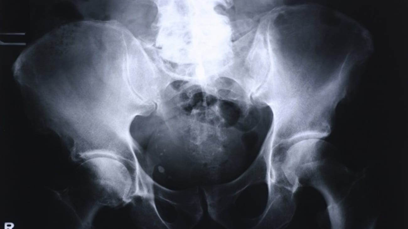 Tough Cases and Complications in Total Joint Arthroplasty