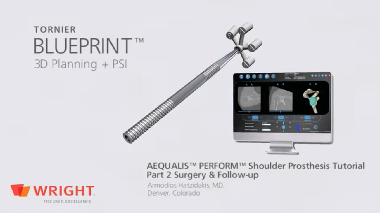 Clinical Use of BLUEPRINT™ on a B3 Glenoid - Part 2 Surgery and Follow-up - Armodios Hatzidakis, MD [CAW-2821]