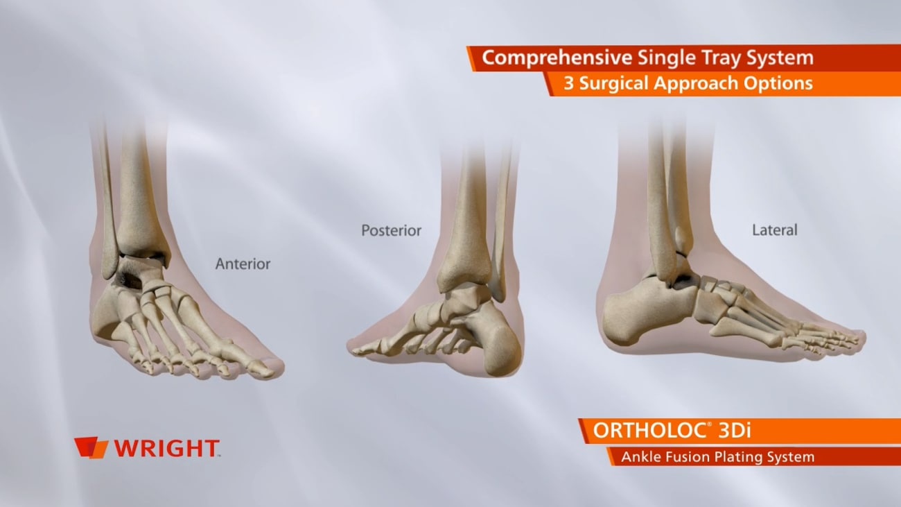 ORTHOLOC™ 3Di Ankle Fusion Plating System Animation [009112]