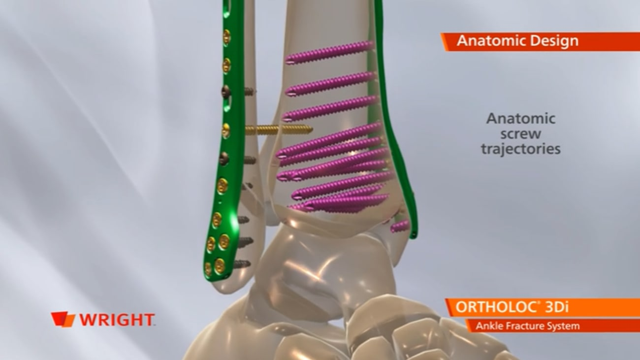 ORTHOLOC™ 3Di Ankle Fracture System Animation [009271]