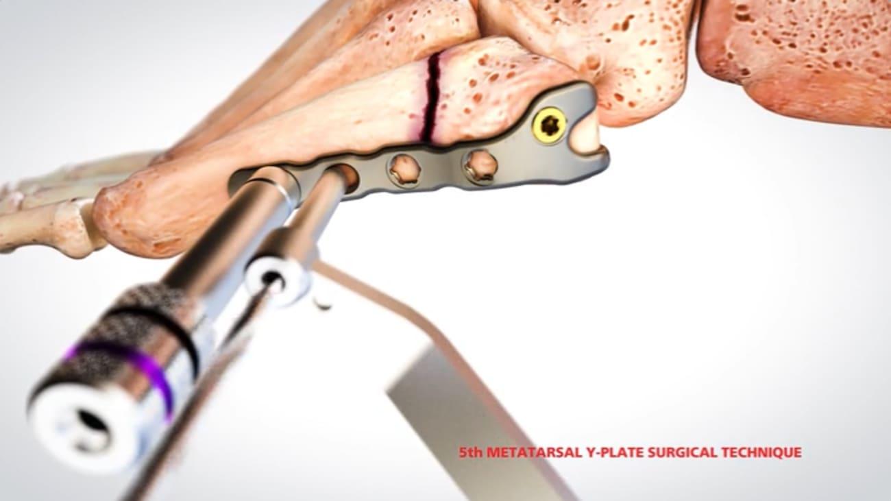 Ortholoc 3di Small Bone Plating System Animation 015508 Broadcastmed