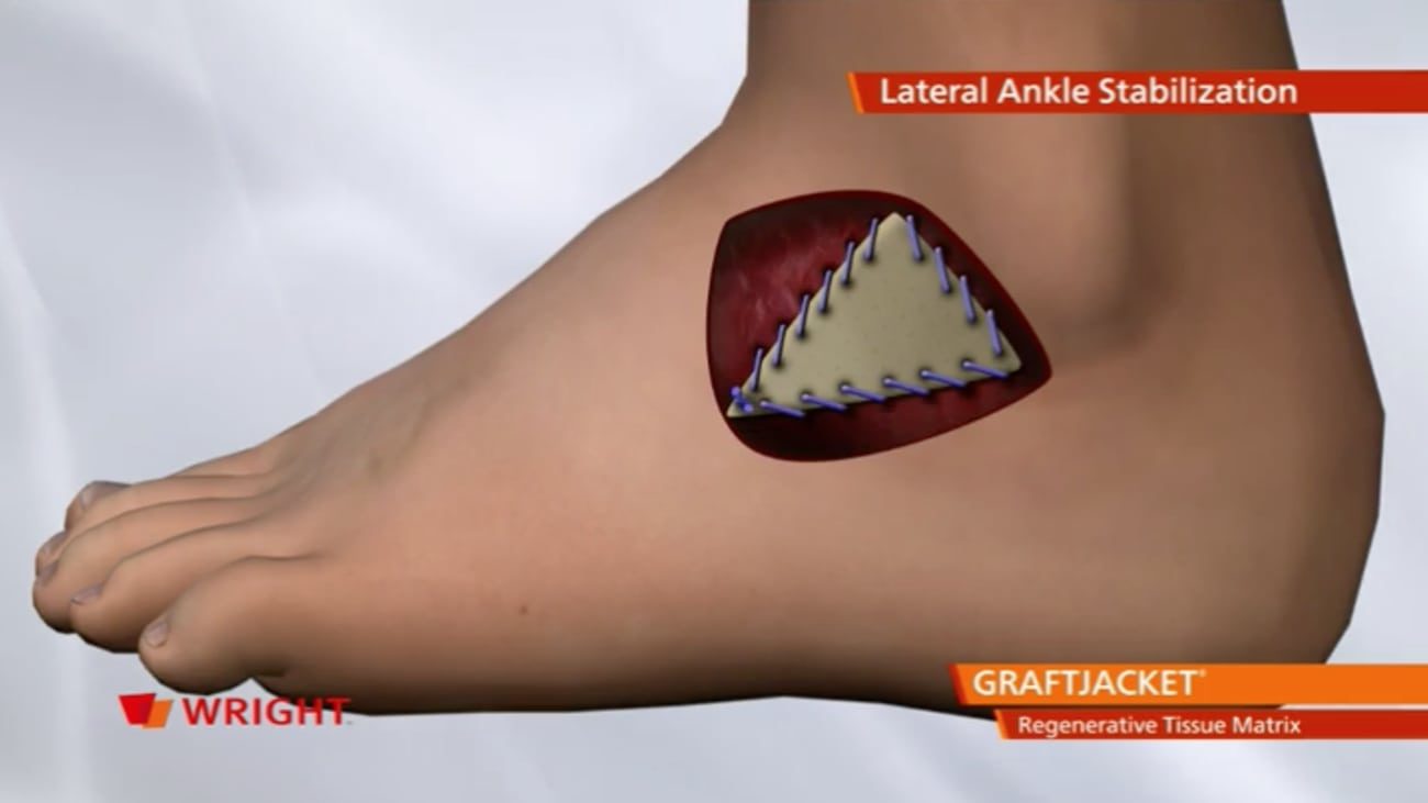 GRAFTJACKET™ Regenerative Tissue Matrix Lateral Ankle Stabilization Animation   009130  A_27-Nov-2013
