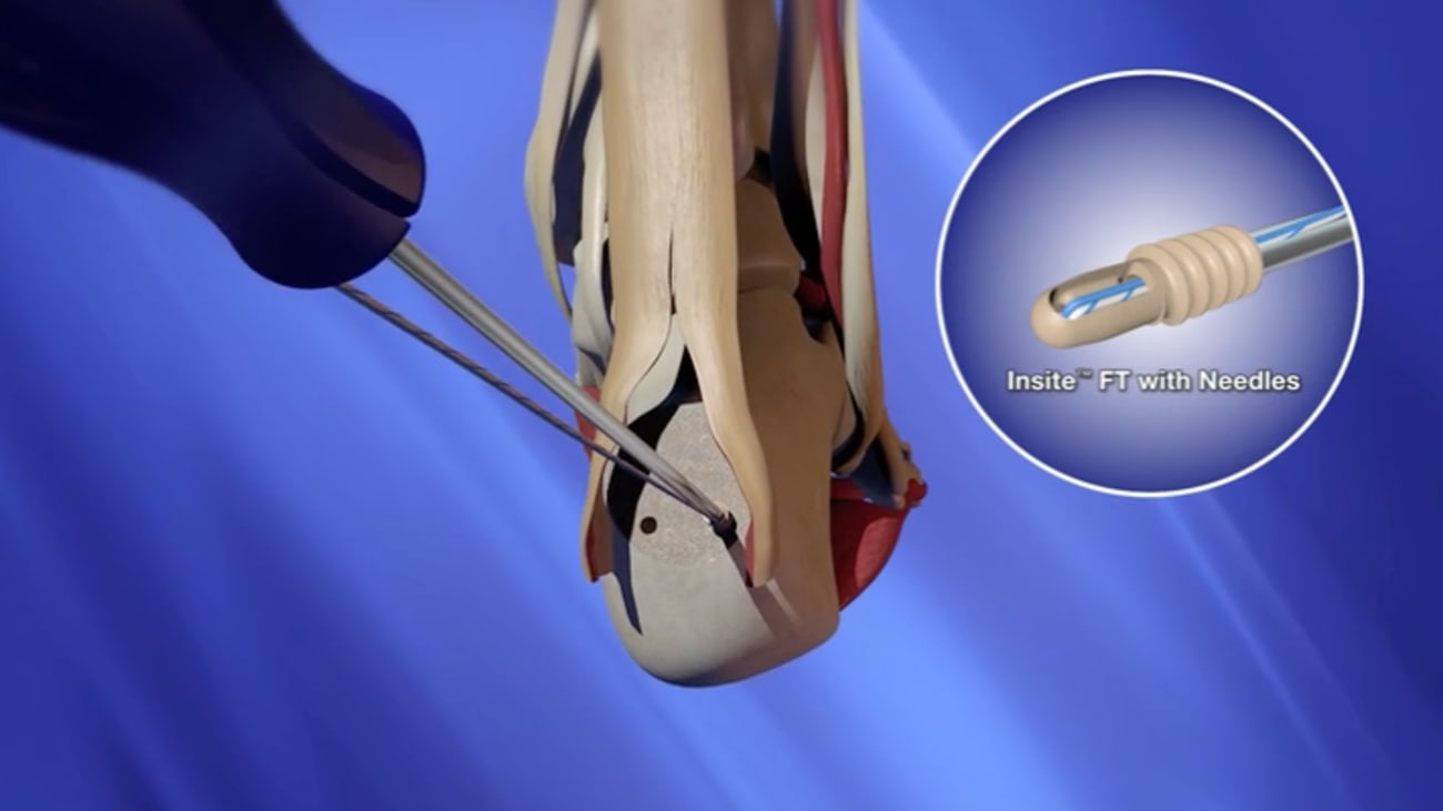 INSITE™ FT Suture Implant with 3.5mm PITON™ Animation [CAW-6693]