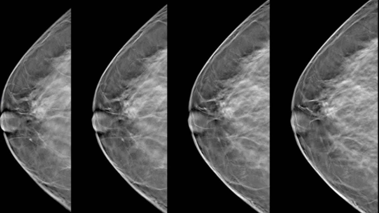 Clinical Minutes: 3D Tomosynthesis Mammography