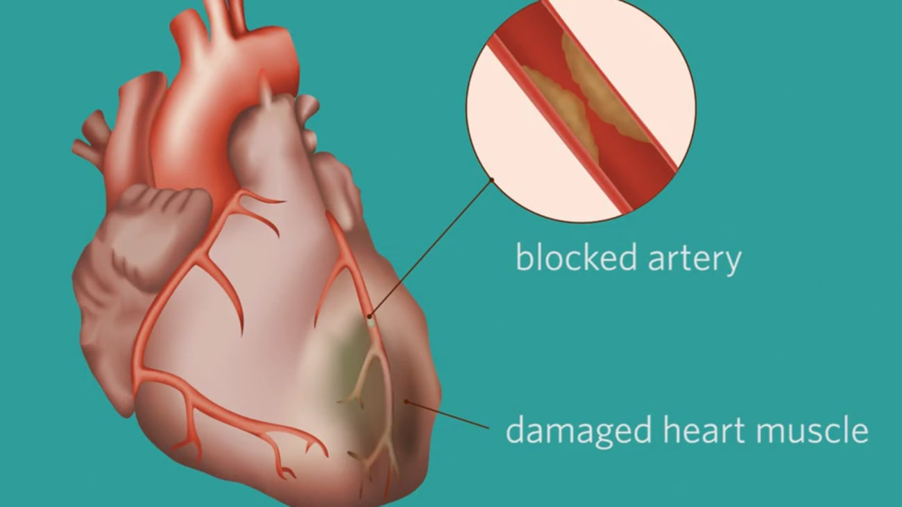 Clinical Minutes: Cardiac Catheterization - BroadcastMed
