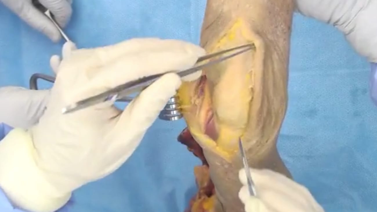 Elbow Arthroplasty featuring Latitude: Triceps-Tongue Exposure Technique - Shawn O'Driscoll, MD [CAW-1218]