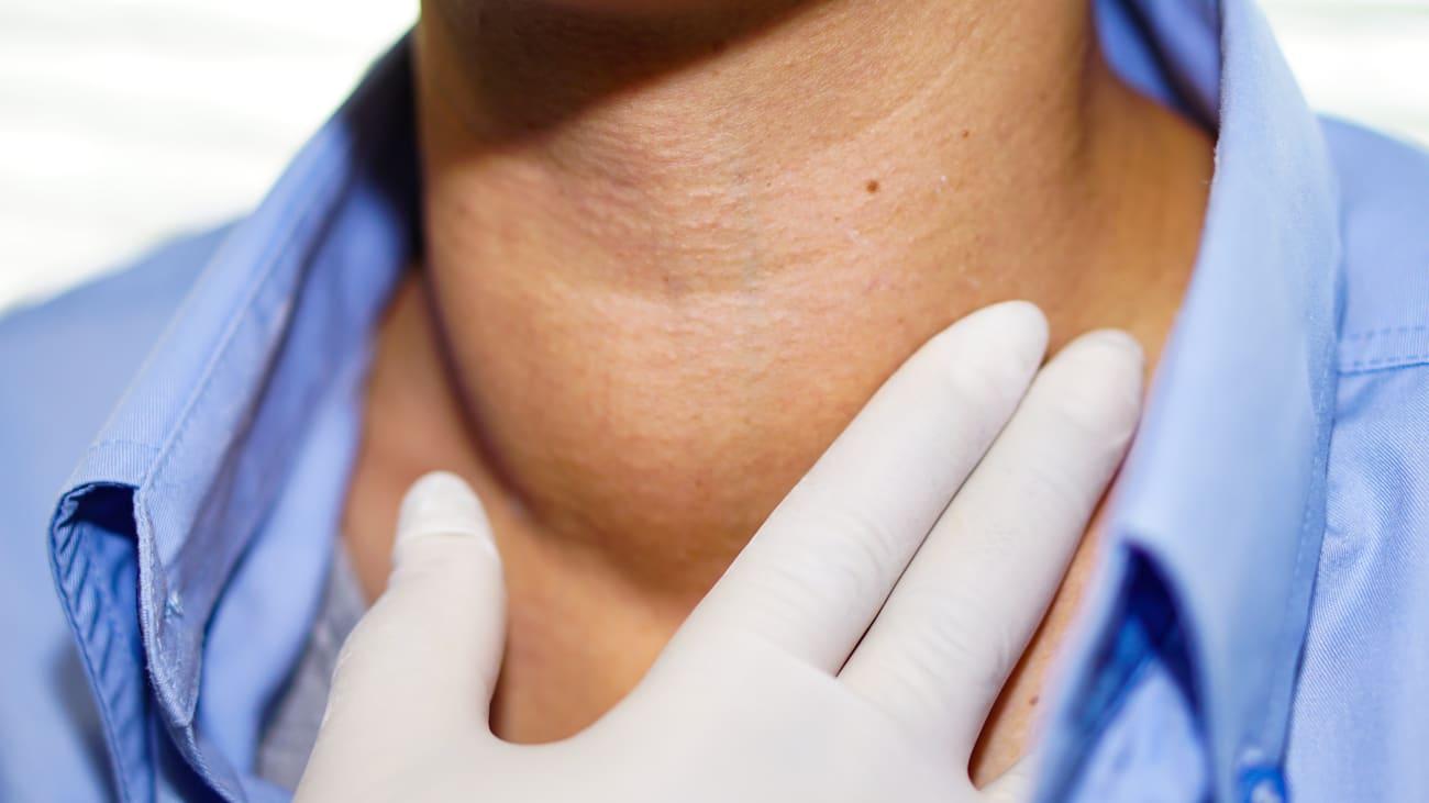 Neuroendocrine cancer best doctors Hpv throat doctor