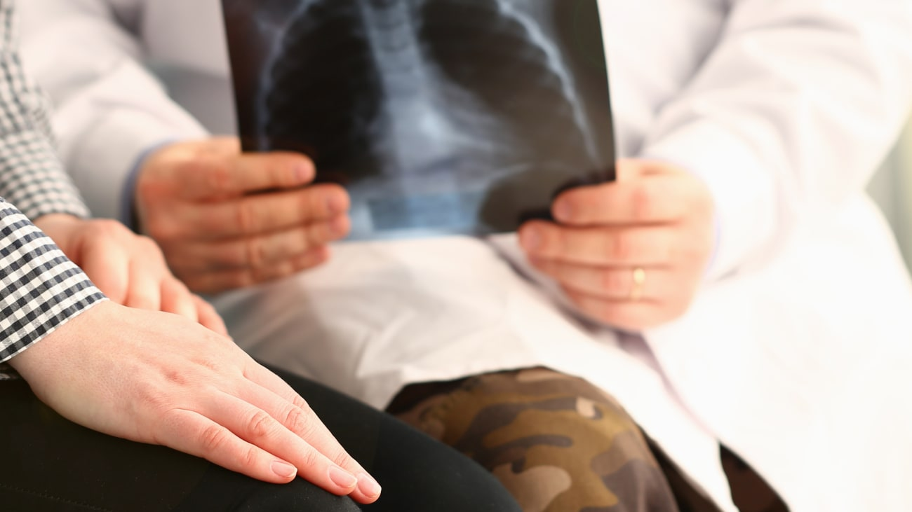 COVID-19 and Cancer: Lung Health and the Cancer Patient