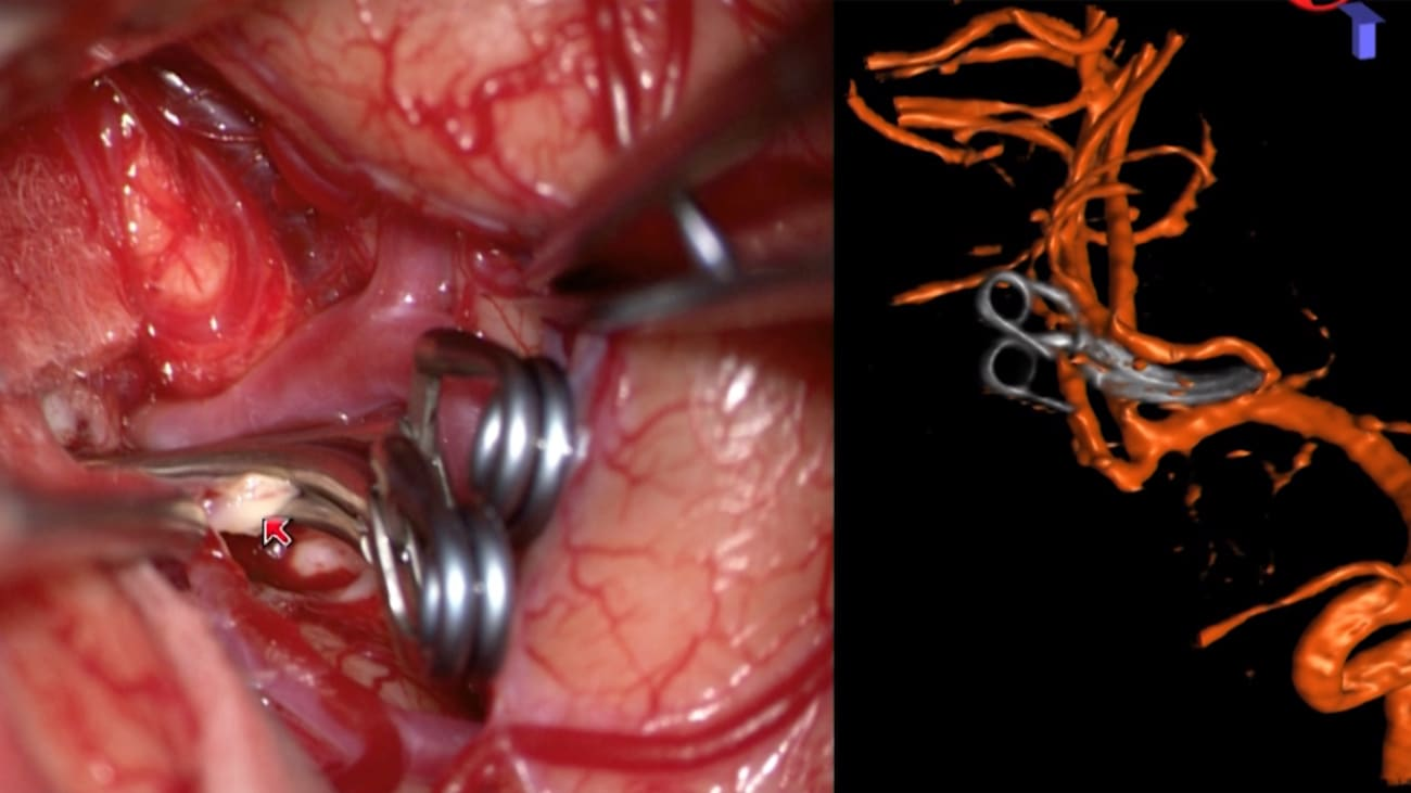 Brain Aneurysms Update | Treatment and Case Reports