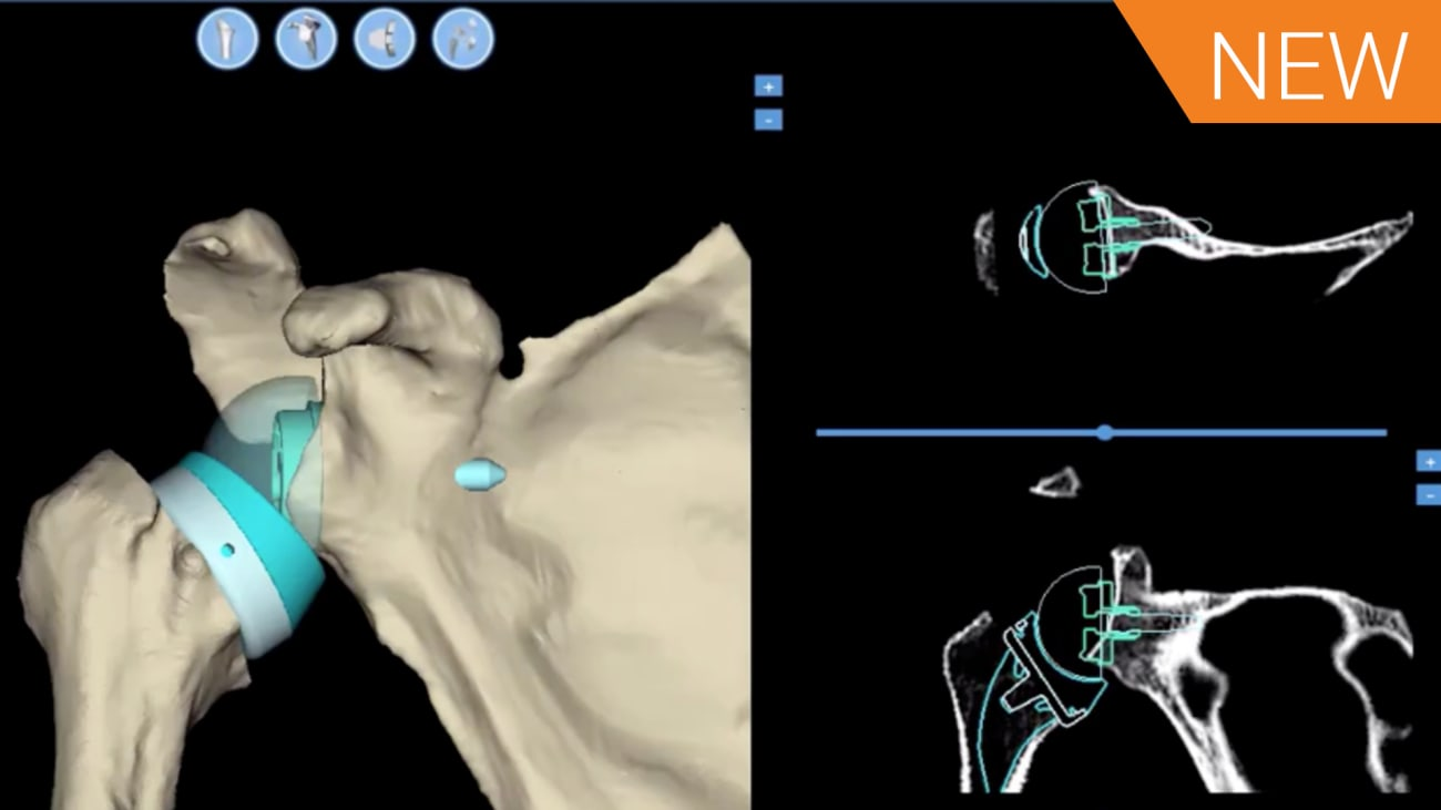 B2 Glenoid Critical Assessment & Virtual Implantation using BLUEPRINT™ 3D Planning Software with Eric Black, MD [AP-010263A]