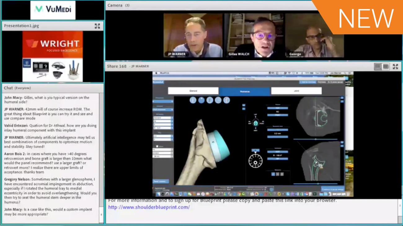 BLUEPRINT™ Complex Case Debate: Pre-Operative Planning and Decision Making for a C2 Type Glenoid [CAW-9767]